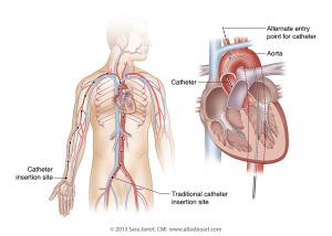 Cardiac Cath for HCM