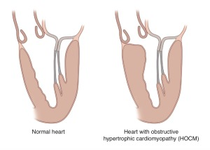 In Hypertrophic Obstructive Cardiomyopathy, abnormally enlarged heart muscle obstructs (or blocks) blood flow from the heart and often causes mitral valve abnormalities. Click to enlarge.