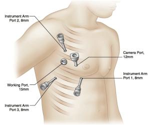 HOCM Robotic Surgery